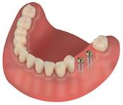 Implanty zębów - zdjęcie 2