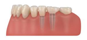 Implanty zębów - zdjęcie 3