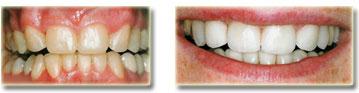 stomatologia-zachowawcza3
